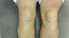 自分の膝の痛み