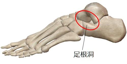 足根洞症候群 | 小川鍼灸整骨院