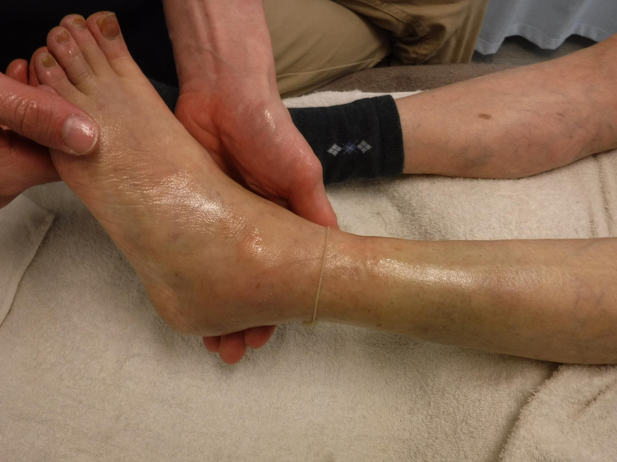 損傷 二分 靭帯 足首のテーピングの巻き方について(足関節捻挫・二分靱帯損傷・腓骨下端部骨折・第5中足骨骨折)